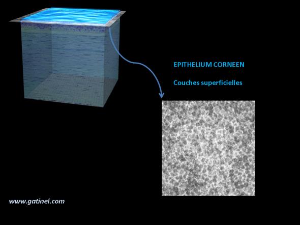 microscopie confocale de l'épithélium cornéen superficiel