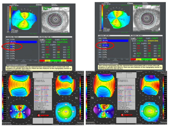 false positives for automated diagnosis of Keratoconus
