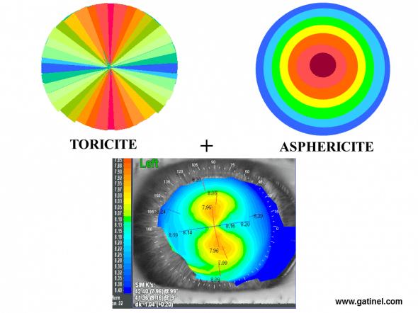 toricité asphéricité aspect topographique spéculaire