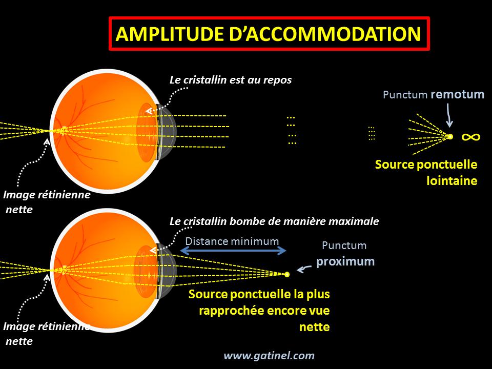 d73673e59992d3 L amplitude d accommodation est exprimée en dioptries et est reliée à la  distance qui sépare le punctum remotum (le point vu net le plus éloigné  sans ...