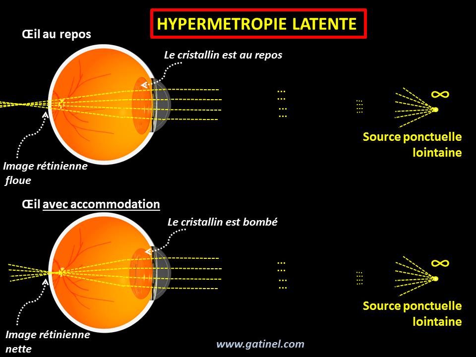 metode de hipermetropie