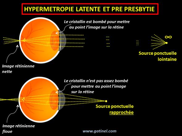 hypermétropie latente et pré- presbytie
