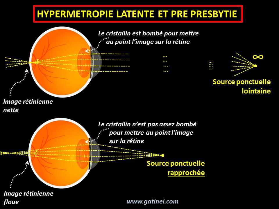 Hypermétropie et presbytie - Docteur Damien Gatinel c1422c667f81