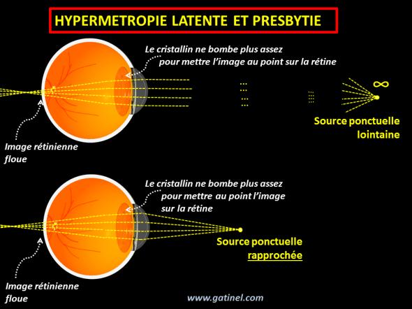 hypermétropie décompensée par la presbytie