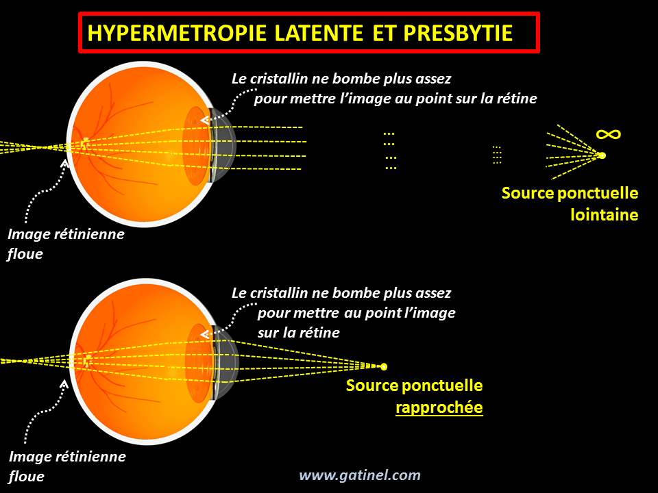 Hypermétropie et presbytie - Docteur Damien Gatinel ff87af24ccda
