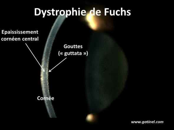 aspect biomicroscopique de la dystrophie de Fuchs
