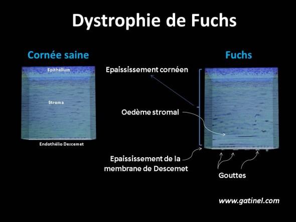 Guttata et dystrophie de Fuchs