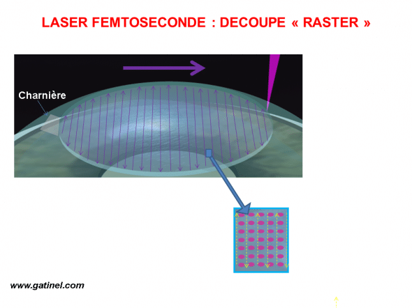 découpe laser femtoseconde capot LASIK