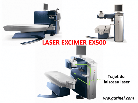Présentation du laser excimer wavelight EX 500