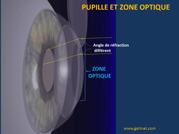 pupille zone optique schéma