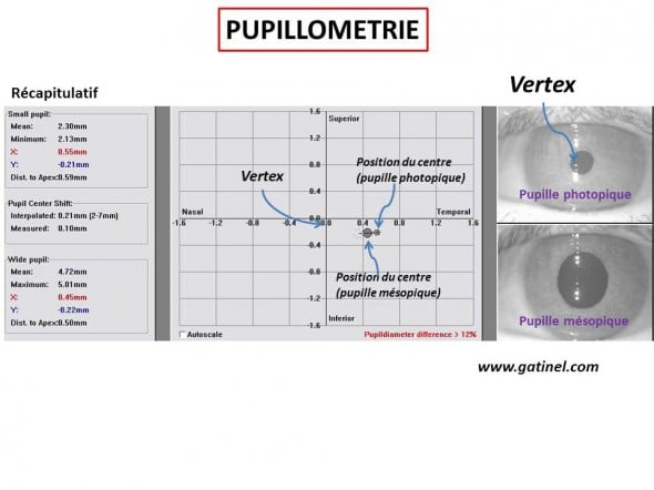 Examen de pupillométrie : le vertex est par convention le centre du repère cartésien dans lequel est localisé le centre de la pupille. L'éclairage variable permet de faire varier le diamètre de la pupille (photopique : fort éclairement, mésopique : faible éclairement). Le centre de la pupille se déplace vis-à-vis du vertex lors des mouvements pupillaires: on parle de shift pupillaire.
