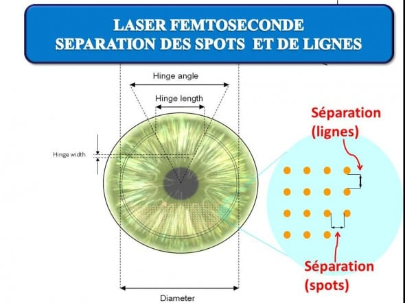 The Exxx_xxx_5197ment of the spots delivered within the cornea is regular: the spacing between the spots and lines is of the order of 8 microns.