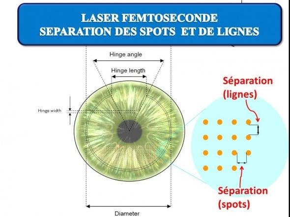 L'écartement des spots délivrés au sein de la cornée est régulier: l'espacement entre les spots et les lignes est de l'ordre de 8 microns.
