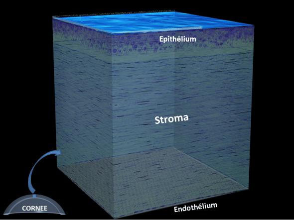 Parmi les différentes couches de la cornée, le stroma représente la plus épaisse: c'est elle qui est sculptée par le laser excimer au cours du LASIK