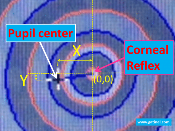 "The center of the pupil defines the origin of a Cartesian domain in which the pupil center coordinates can be computed.The corneal reflex (""Apex"") is a fixed landmark, wheras the pupil center can shift with pupil movements."