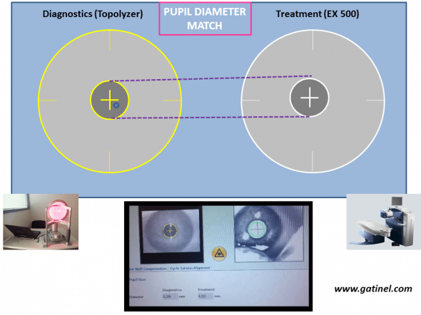 The comparison between the pupil diameter at the Topolyzer and under the EX 500 excimer laser is performed during registration. It is important to obtain comparable values. This ensure adequate pupil center location with regards to the limbus, in case of large pupil center shift when mydriasis  or myosis occurs.