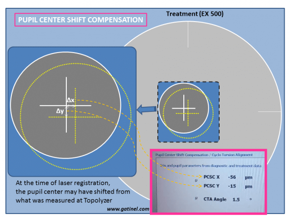 The displacement of the pupil center with regards to the limbus between the Topolyzer reference image and the actual laser image is shown in terms of X and Y distances.