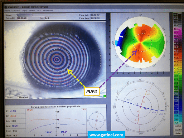 The pupil rim can be delineated and superimposed to the curvature map.