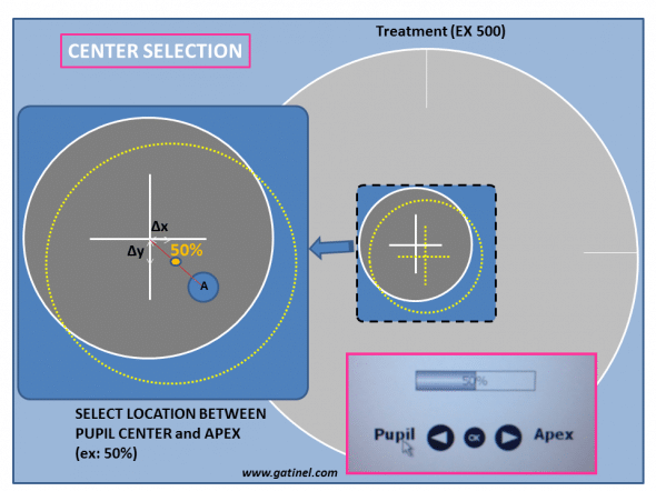 As the rental of the corneal Apex relative to the pupil center is known, any point in between these two landmarks can be used to center the laser ablation.