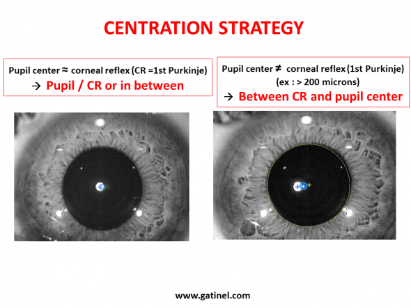 Depending on the deviation between the pupillary axis and visual axis (angle Kappa), the rental of the visual axis intercept RK corneal flat may vary.