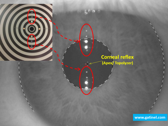The location of the corneal reflex is performed with regards to the limbus.