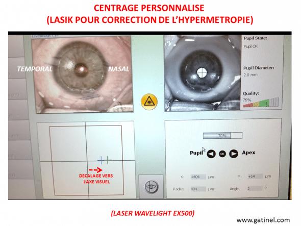 LASIK hypermétropie centrage personnnalisé grand angle kappa