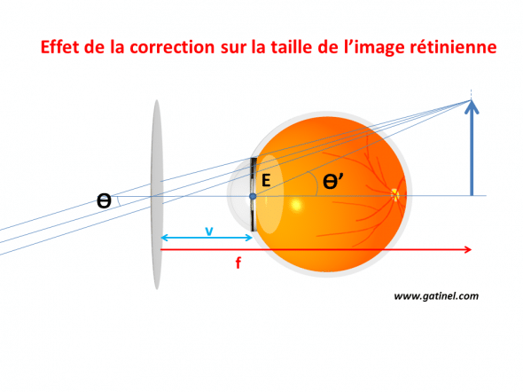 The object behind an angle of ϴ with the pupil of entry of the eye with hyperopic eye (this is the apparent angular size). The corrected eye 'sees' the object corresponding to the image formed by the corrective lens, angle ϴ'.
