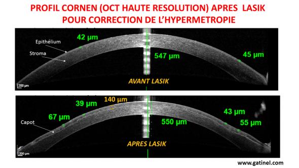 LASIK hyperopia corneal profile OCT HR
