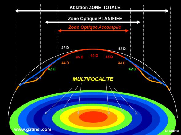 Photoablation au laser excimer pour la correction hypermétropique avec zone optique programmée étroite. En haut, représentation théorique schématique du profil cornéen préopératoire (en gris), postopératoire avant régression (en rouge/orange) et postopératoire après régression (en bleu). Les chiffres sont des valeurs kératométriques théoriques, la kératométrie centrale initiale étant de 42 D. En bas, les zones colorées concentriques correspondent à la représentation de la courbure extrapolée à partir du profil cornéen postopératoire final (après régression). En raison du diamètre final plus étroit de la zone optique, la multifocalité centrale est à pupille égale plus marquée que sur la et laisse augurer d'un effet pseudo accommodatif plus marqué. Il est crucial de bien centré la zone optique, ce qui requiert d'estimer l'angle Kappa et décaler le traitement en nasal de la pupille irienne. La réalisation de traitements asphériques (ex: Q – facteur) permet de moduler la variation de courbure, pour accentuer cette multifocalité dans le cas d'une correction LASIK pour hypermétropie et presbytie.
