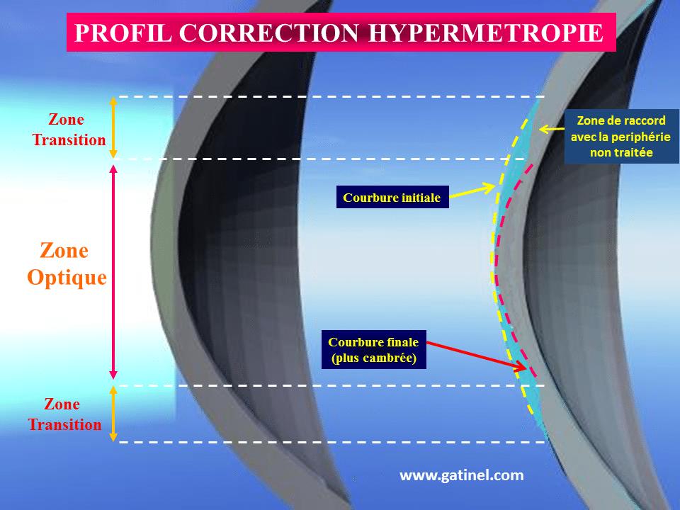 hipermetropie de operat