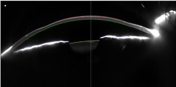 LASIK hypermétropie profil cornéen