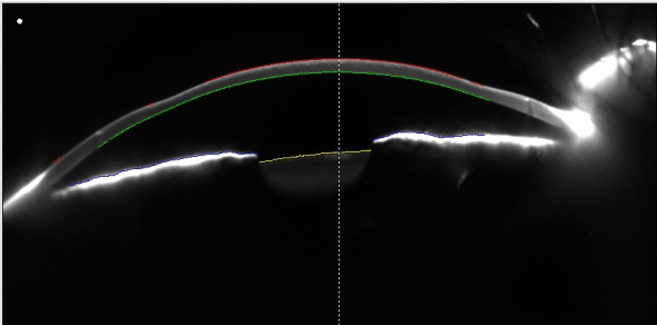 LASIK hyperopia corneal profile