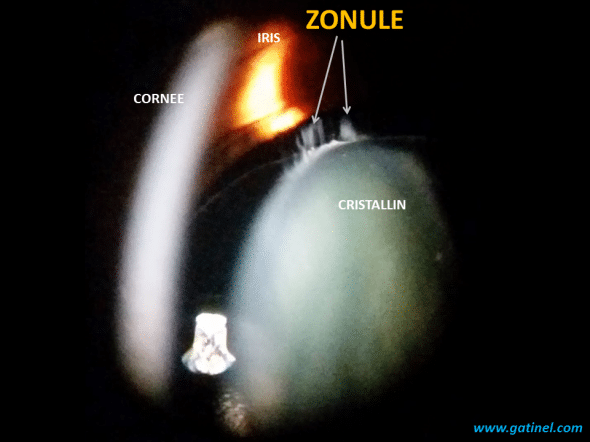 representation of the zonule of the lens