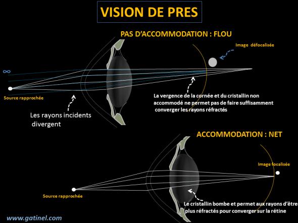 Pour un œil emmétrope, les rayons émis par les sources éloignées sont parallèles quand ils rencontrent l'œil, et convergent dans le plan de la rétine après réfraction par la cornée et le cristallin au repos. Pour une source rapprochée, les rayons rencontrent l'œil alors qu'ils divergent, et ceci oblige l'œil à accommoder pour augmenter sa puissance optique (vergence) et permettre aux rayons d'être réfractés pour être focalisés dans le plan de la rétine.