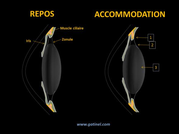 L'accommodation est effectuée grâce à une contraction du muscle ciliaire (1). La réduction de son diamètre provoque un relâchement de la zonule. Le cristallin adopte alors sa forme naturelle, qui est plus bombée. Sa face antérieure se déplace légèrement vers l'avant, la pupille se contracte (myosis). Le bombement du cristallin et la réduction du diamètre de la pupille permettent de mettre au point des objets rapprochés sur la rétine.