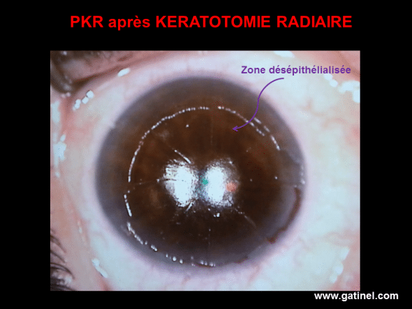 During the PKR indicated to correct a secondary hyperopia after radial keratotomy, the epithelium is removed, before excimer laser correction is issued on the corneal stroma. The trace of the incisions is clearly visible.