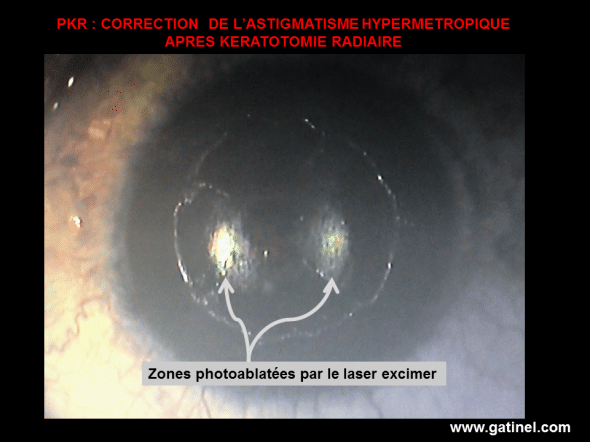 Photograph taken after the grant of a 2.50 diopters of reverse hypermetropique astigmatism correction (+ 2.50 x 10 °). The eye had surgery of radial keratotomy (4 incisions) in the 1990s.