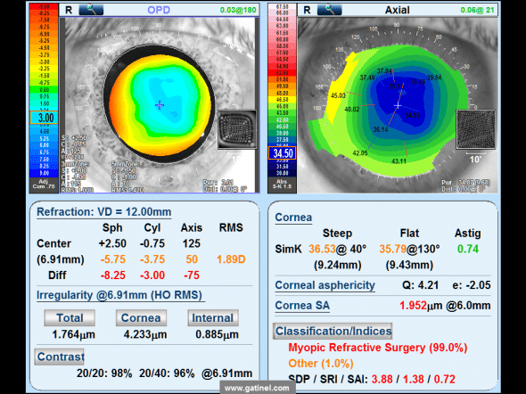 Topo map aberrometrique (OPD SCAN III) patient a candidate for a refractive surgery to correct a post KR farsightedness. The analyzed eye was operated of myopia by the technique of radial keratotomy some 20 years ago. Central refraction is hyperopic (+ 2.50 D). Uncorrected Visual acuity by far is 5/10, nearly Parinaud 10. On the outskirts of the pupillary area, the refraction is myopic (-5.75 D) with an oblique astigmatism of-3.75 D. This variation is induced by the profile very oblate of the cornea (rapid increase in camber of the Center to the periphery). The corneal Asphericity is measured at + 4.21: ellipse profile very oblate, which generates a rate significant positive spherical aberration (Corneal SA for Spherical Aberration)
