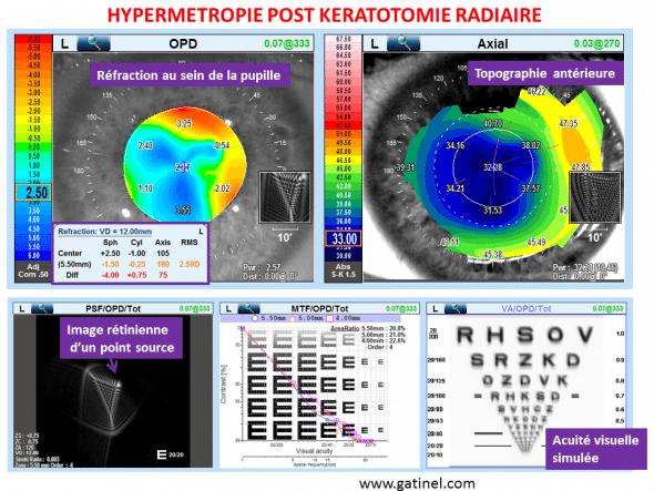 triplopie monoculaire kératotomie radiaire