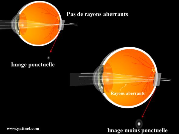 aberrations optiques