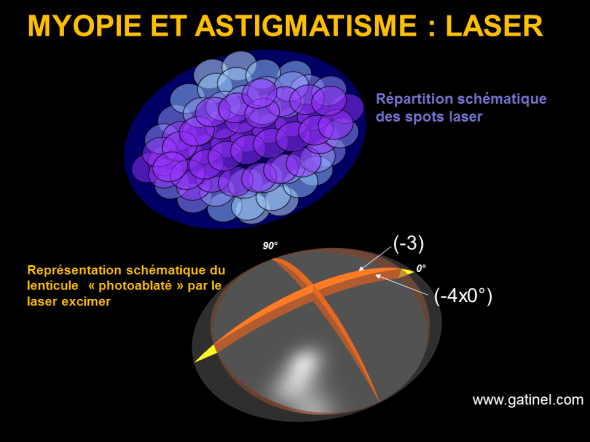 astigmatism and myopia excimer laser correction