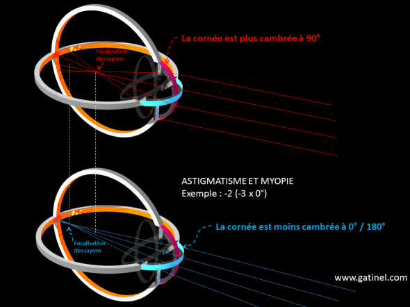 astigmatisme myopique, schéma