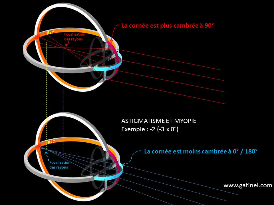Myopia with. Konfliktus különböző nézőpontokból