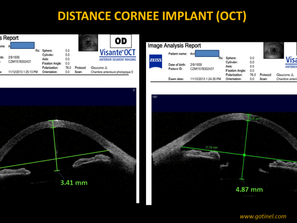 OCT distance implant