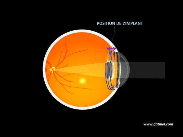 Position de l'implant après l'intervention de cataracte