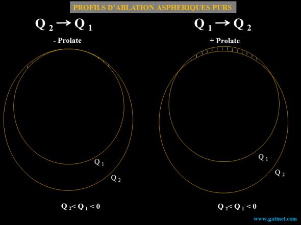 profil d'ablation apshérique pur