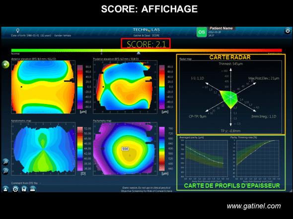 Score Analyzer