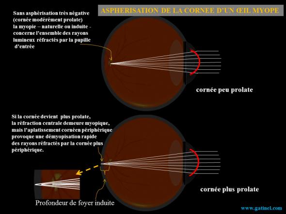 asphérisation et oeil myope