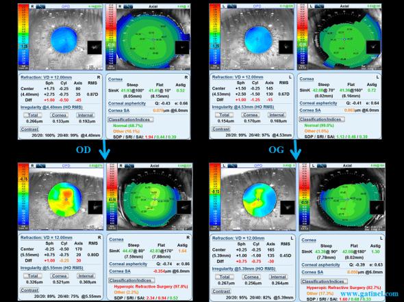 Comparaison entre les cartes topoaberrométriques (OPD Scan III) avant (en haut) et après (en bas) réalisation du LASIK. A droite, la variation obtenue pour l'aberration sphérique cornéenne est proche de -0.4 microns, alors qu'à gauche, elle est proche de zéro. La carte en vergence de l'œil droit révèle un «ilôt» central de réfraction myopique.
