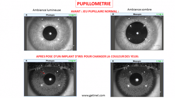 Implant iris pupillométrie